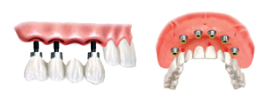 Solutions for Missing Teeth & Denture Wearers